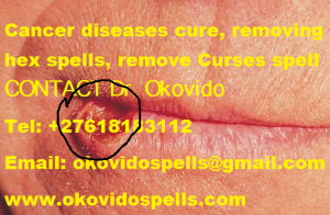 Cancer diseases cure, removing hex spells, remove Curses spell dr Okovido.png